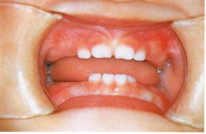 dental03_01