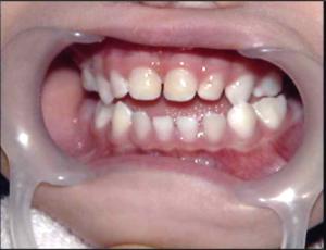 dental09_02