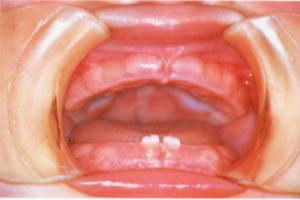 dental02_01