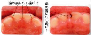 dental02_03