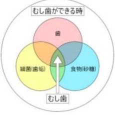 カイスの輪